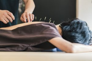 Peter Lok Acupuncture